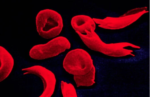 Studies have found synergistic effects of sickle cell adhesion and aggregation