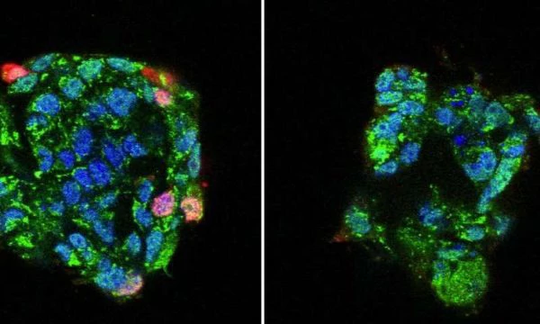 Study Finds Changes in Ca2+ Concentration in Host Cells Play a Key Role in IAV Infection